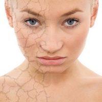 уход за сухой кожей