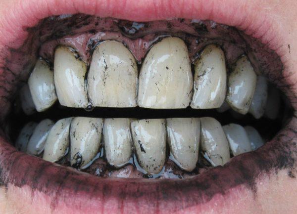 Чистка зубов активированным углем.