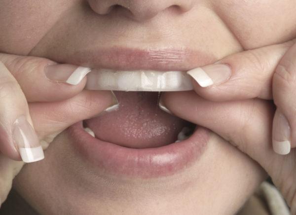 Отбеливание зубов дома.