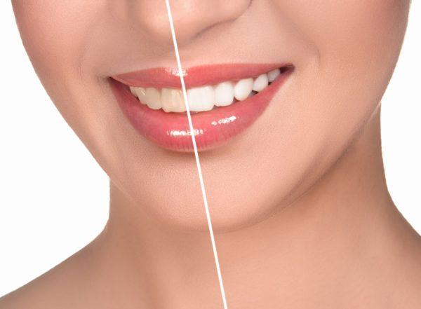 Зубы до и после снятия налета.